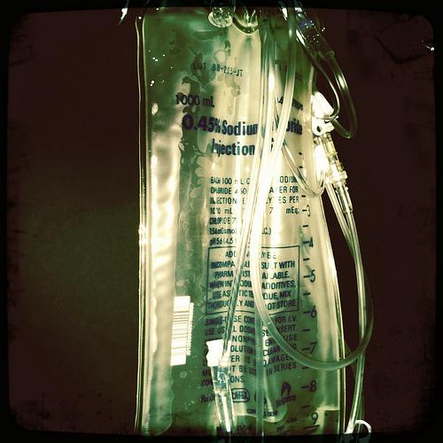 Fluids in sepsis
