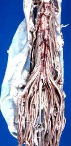 Human_caudal_spinal_cord_anterior_view_description