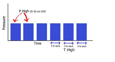 Airway pressure release ventilation