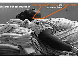 Obese intubation