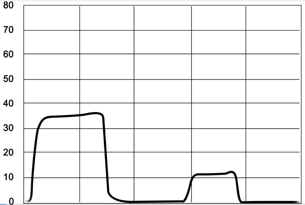 Capnograph showing apnoea
