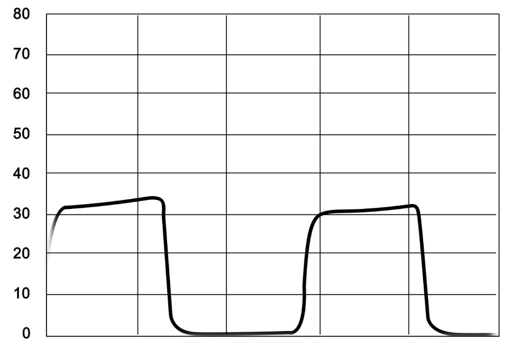 capnograph showing hyperventilation