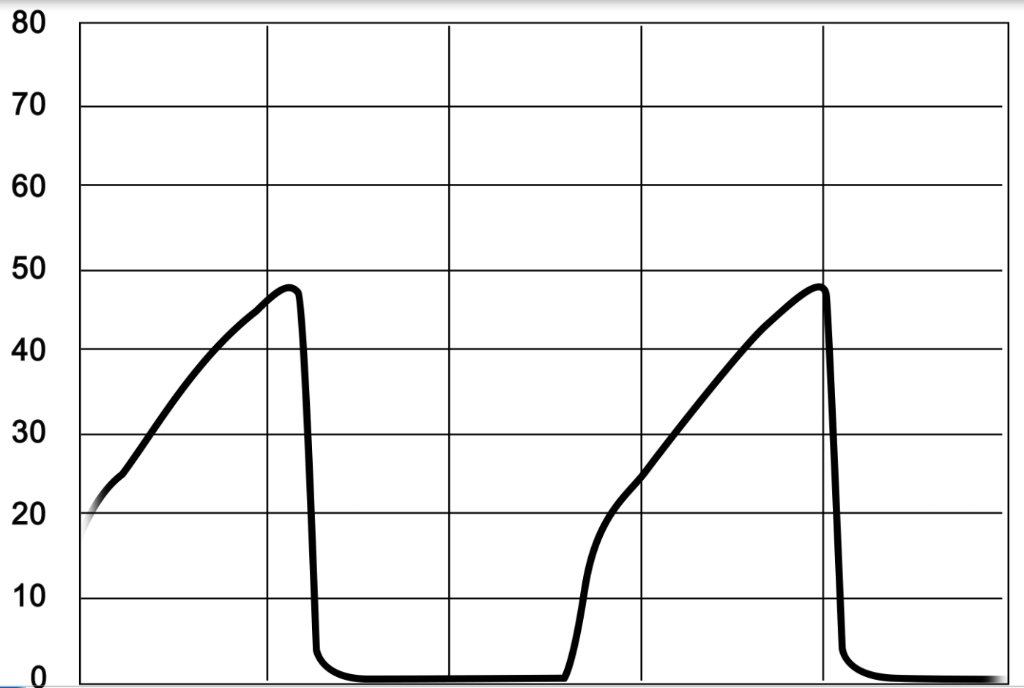 Capnography showing obstruction